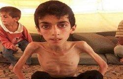 مضايا..وجع جديد الجسد الإسلامي 55_144-thumb2.jpg